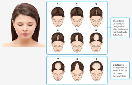 Savin Scale of Female hair loss