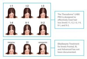 theradome, is it right for me, hair loss.